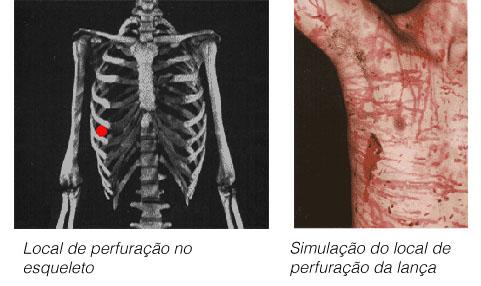 esqueleto_real_torax