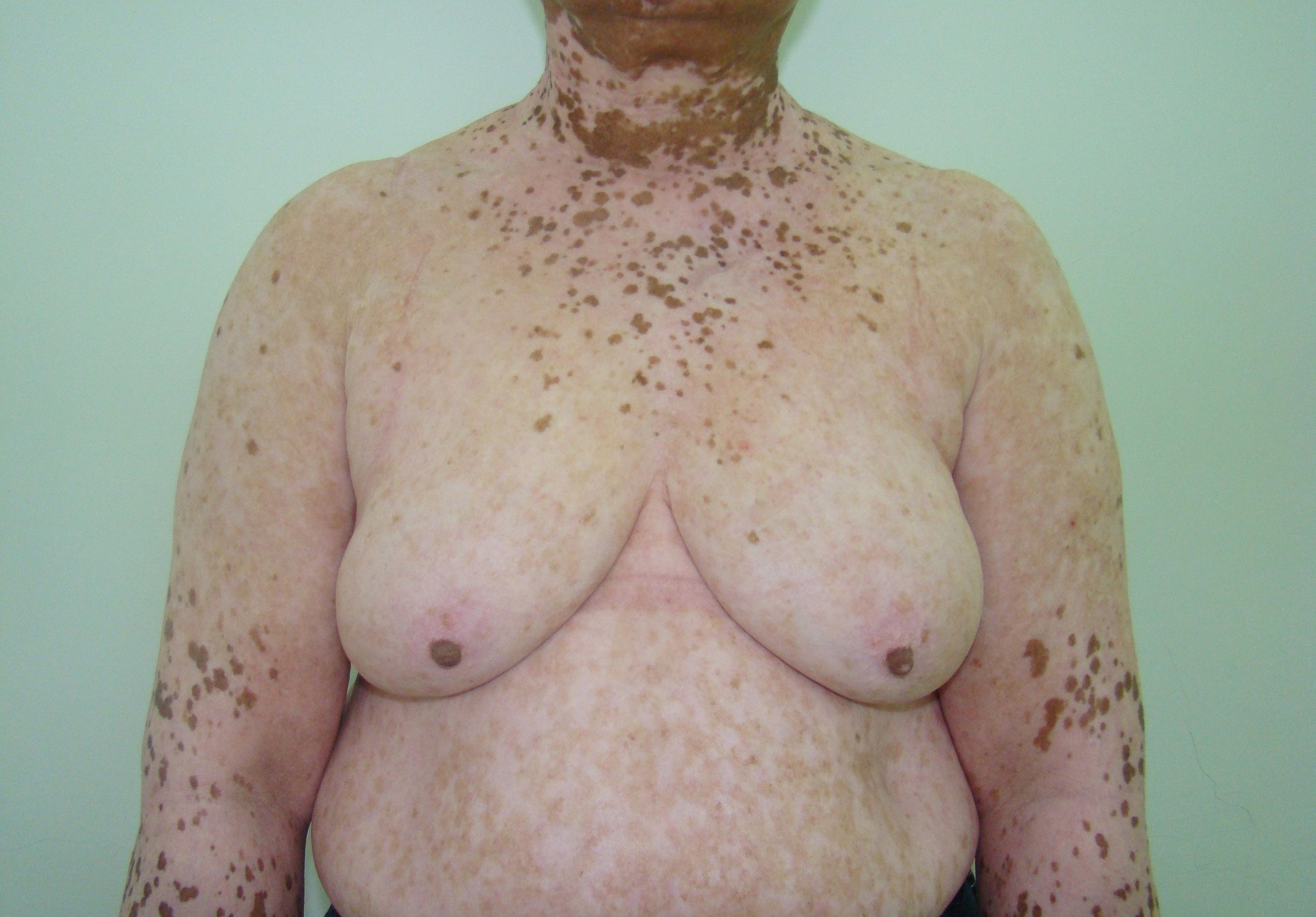 Vitiligo em tórax e abdome – Pré