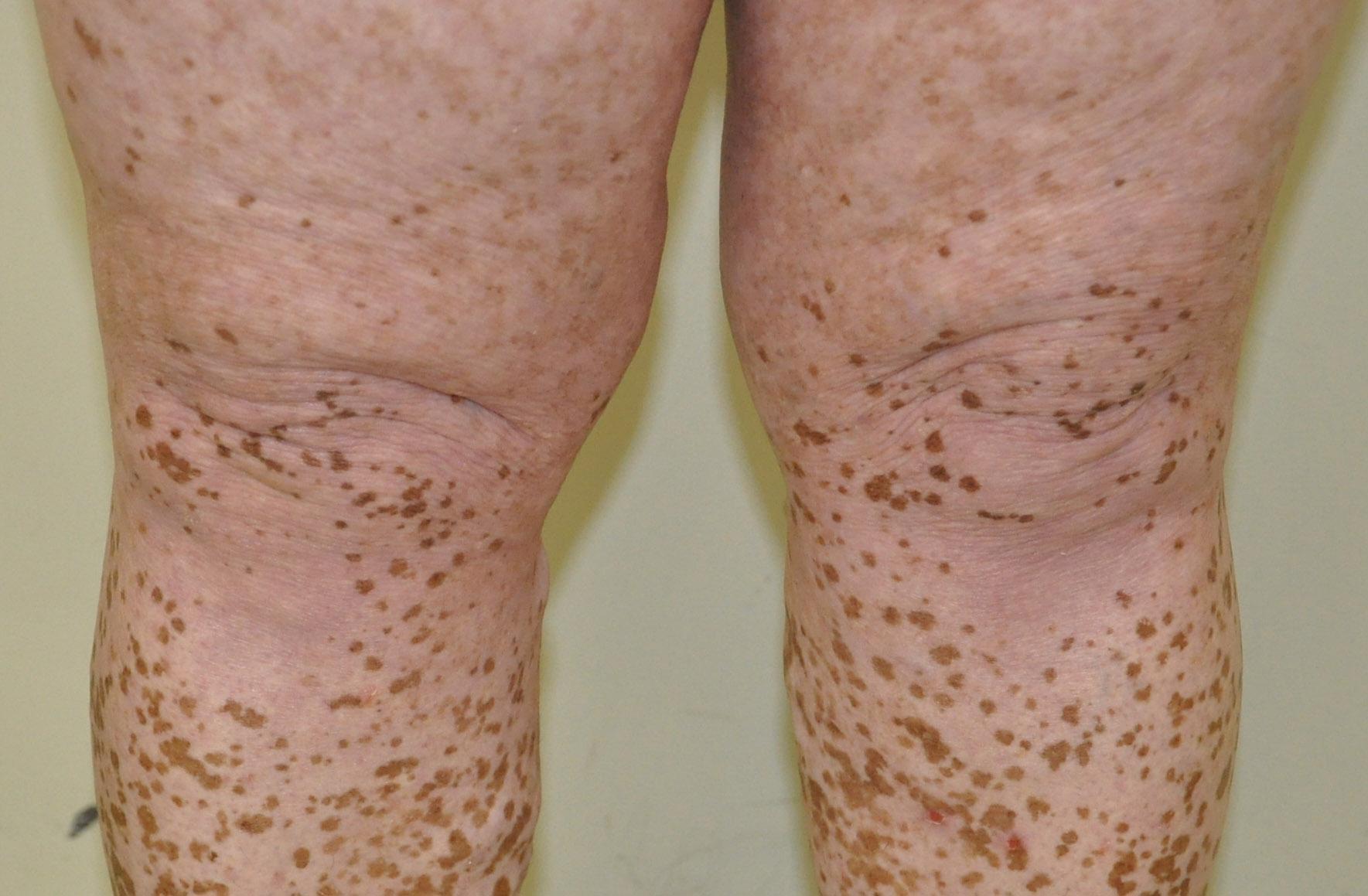Vitiligo em joelhos e pernas – Pré