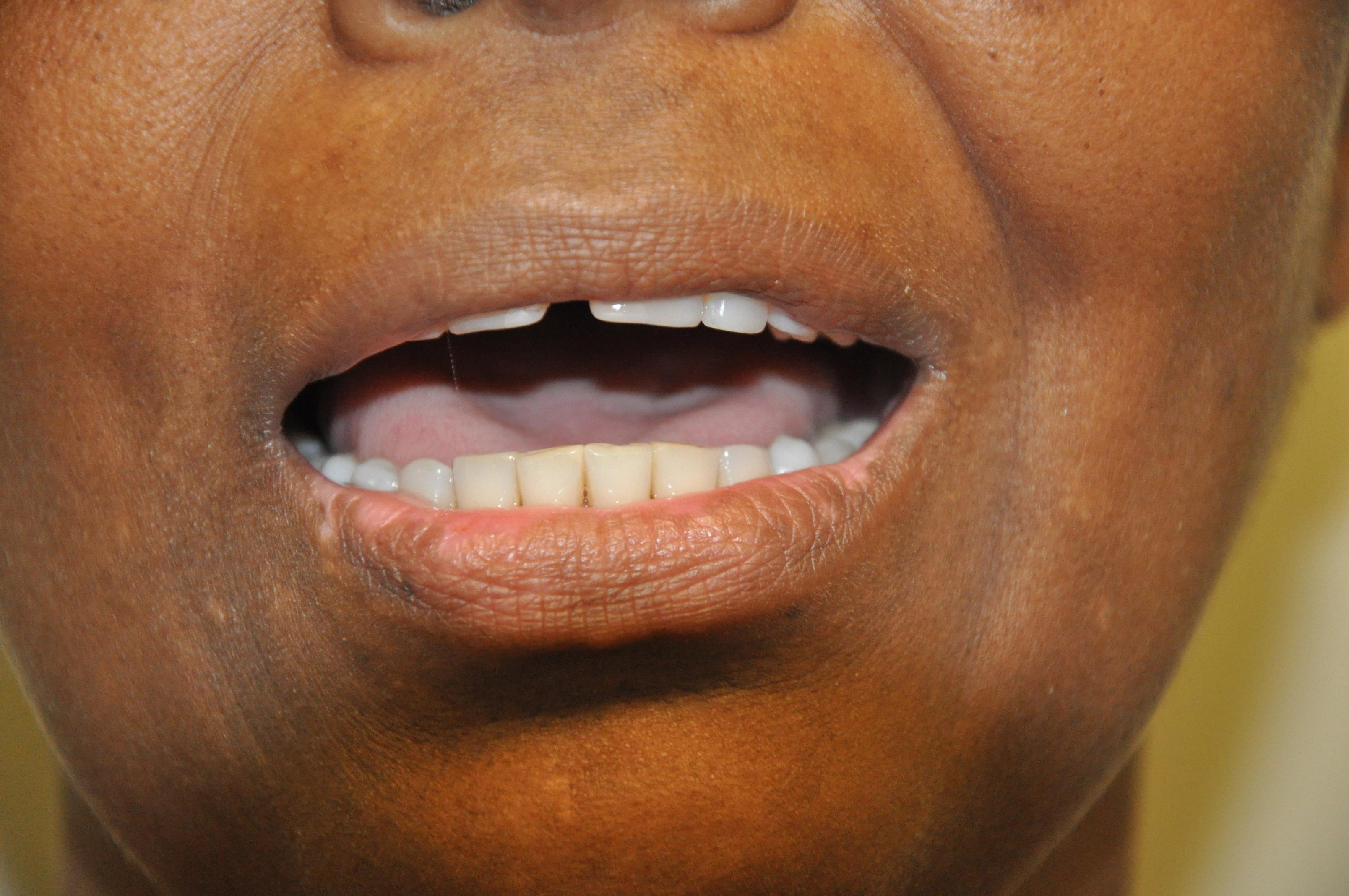 Vitiligo de lábio inferior da boca – Pré