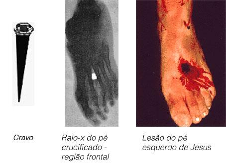 pe_radiografia_real